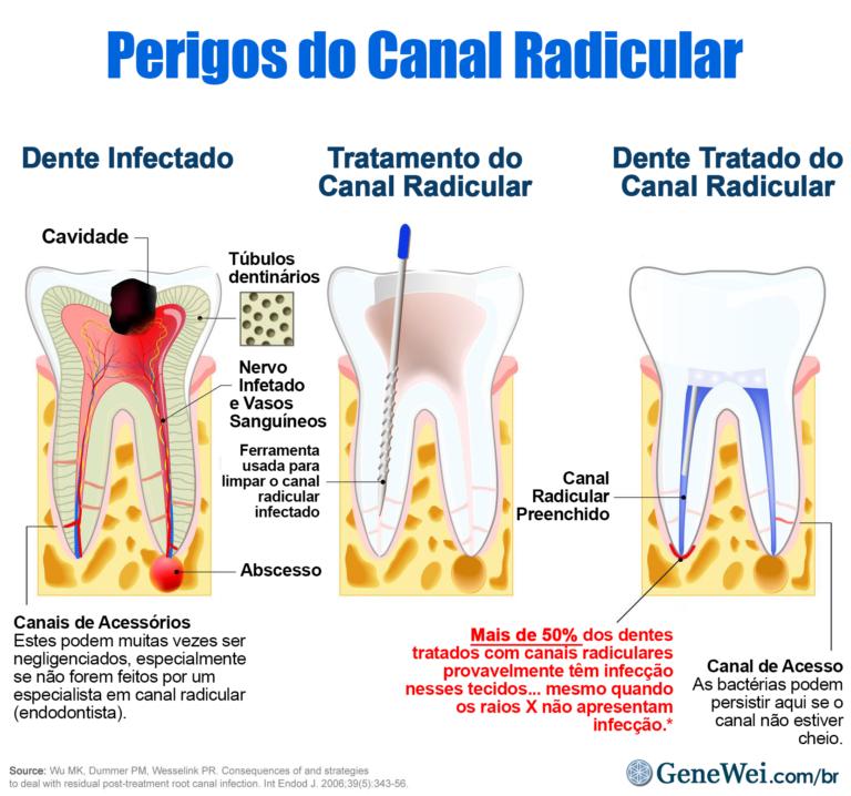 """Diagrama do dente infectado submetido a tratamento endodôntico. O diagrama do dente tratado mostra infecção na ponta da raiz com a legenda """"Mais de 50% dos dentes tratados com canais radiculares provavelmente têm infecção nesses tecidos… mesmo com raios X não mostram infecção"""". GeneWei.com"""