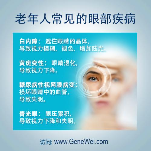 白内障-黄斑变性-糖尿病性视网膜病变-青光眼