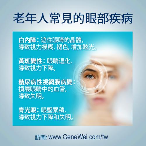 白內障-黃斑變性-糖尿病性視網膜病變-青光眼