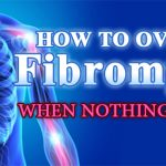 How To Overcome Fibromyalgia With Natural Remedies