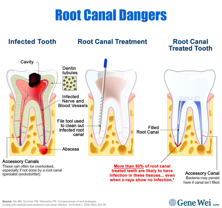 "Diagram of infected tooth undergoing root canal treatment. The diagram of the treated tooth shows infection at the root tip with caption ""More than 50% of root canal treated teeth are likely to have infection in these tissues… even with x-rays show no infection."" GeneWei.com"