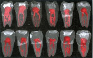 Picture of various teeth, showing the complexity of root canal systems.