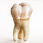 Imagem de um dente cariado. \